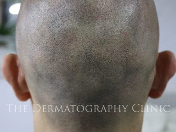 alopecia area smp men after