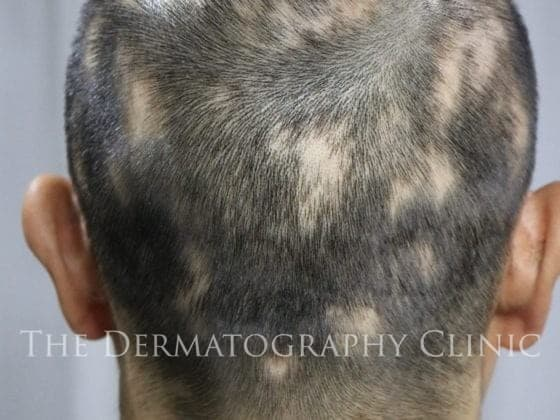 alopecia area smp men before