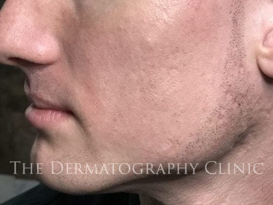 alopecia men stubble after