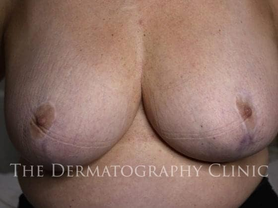 areola restoration before