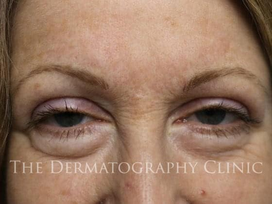 charlotte brows after