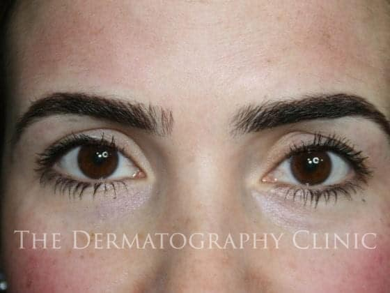 erica brows after