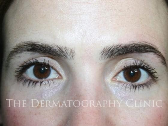 erica brows before