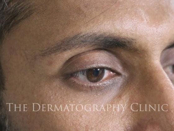 hairstroke eyebrows men after