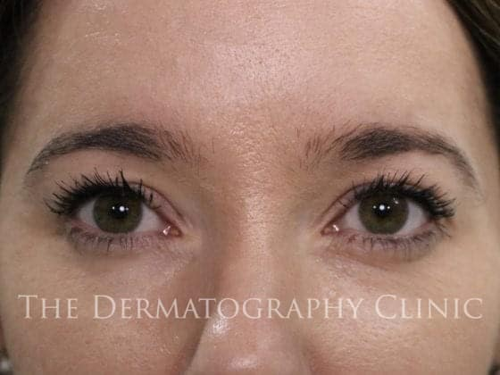helen brows before