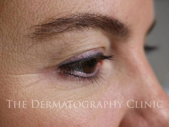 marilyn permanent makeup eyeliner healed