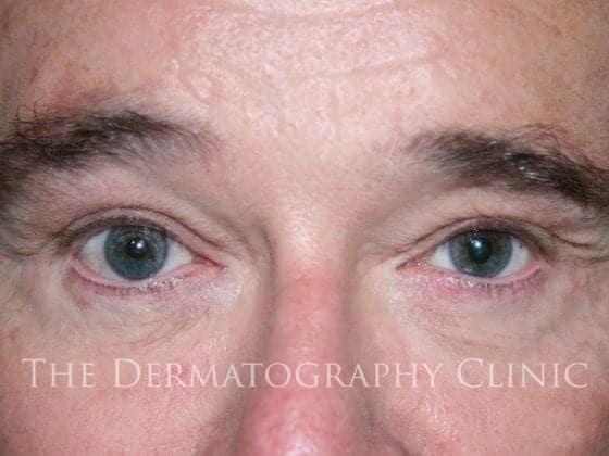 micropigmentation eyes men