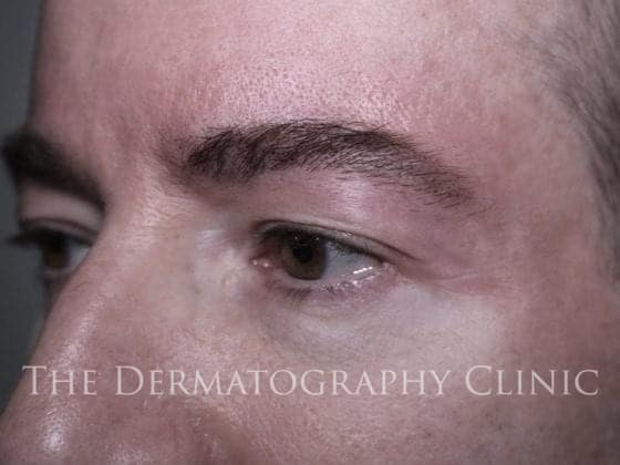 pmu eyebrows men after