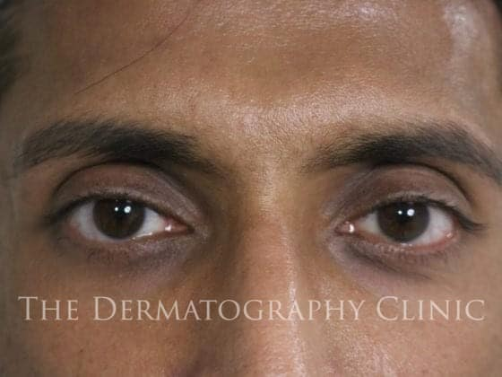 pmu eyebrows men after 1