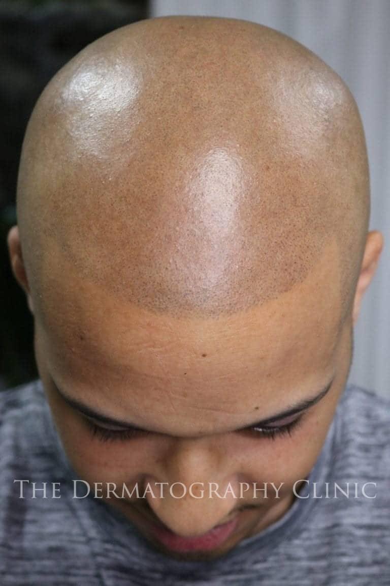 scalp micropigmentation for crown balding
