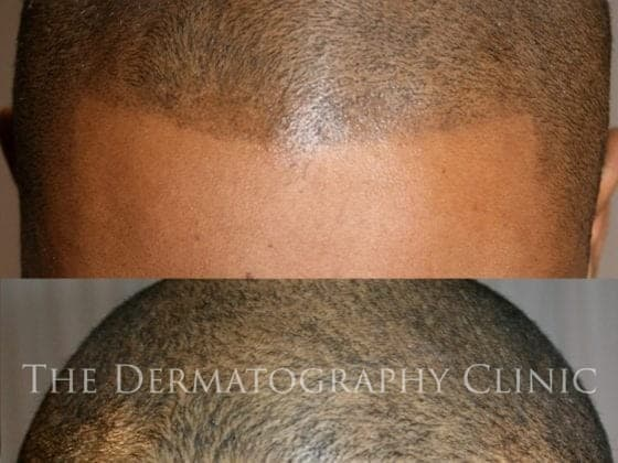 best scalp micropigmentation clinic