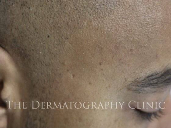 top scalp micropigmentation