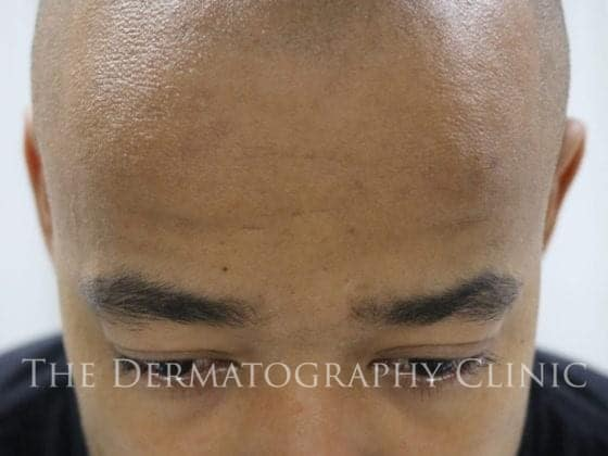 best scalp micropigmentation london
