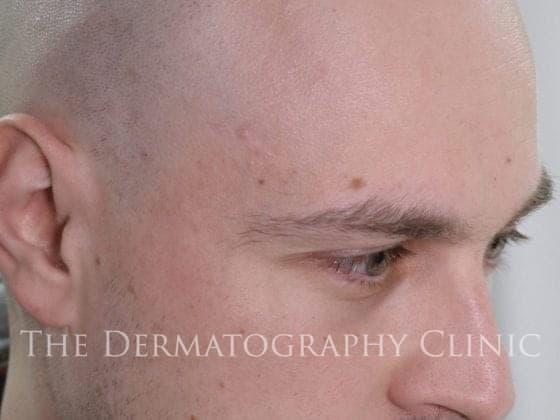tricopigmentation london
