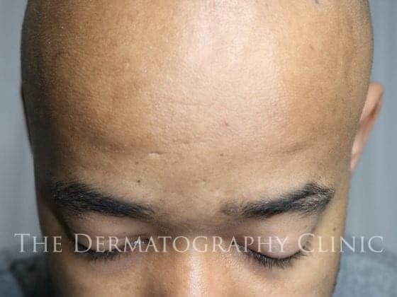 scalp micropigmentation clinic in london