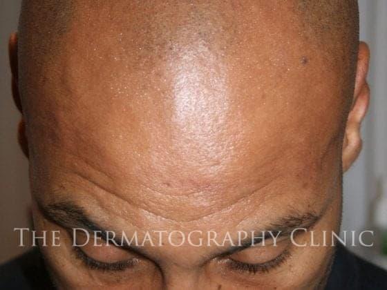hair loss tattoo london