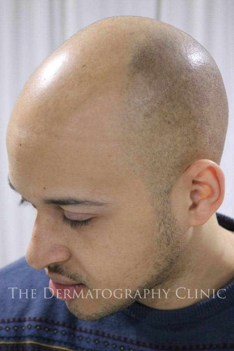 scalp micropigmentation for receding hairline