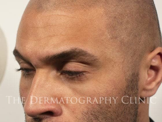 scalp micropigmentation natural hairline