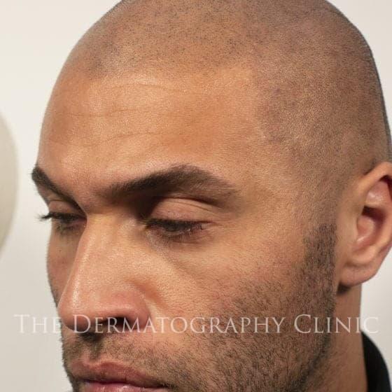 scalp micropigmentation natural hairline