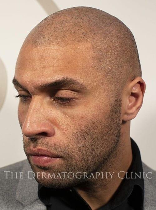 London Hair Loss Treatments