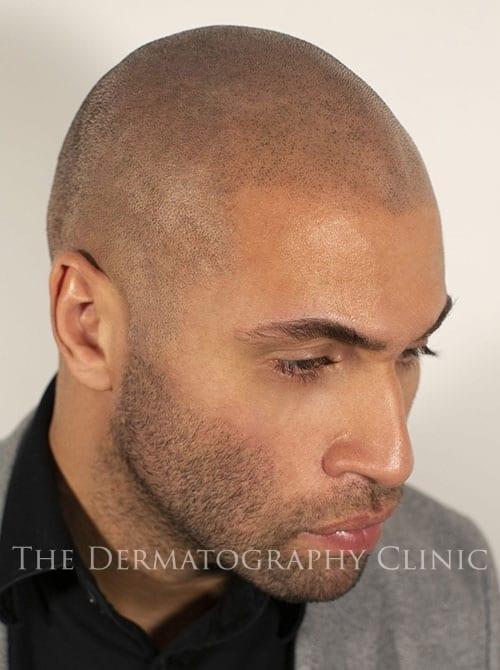 SMP London Mens Treatment