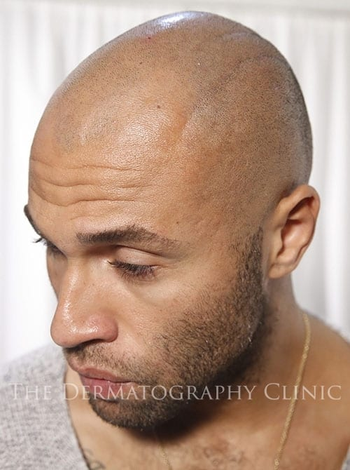 SMP London Before Treatment