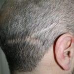 Male Hair Scars