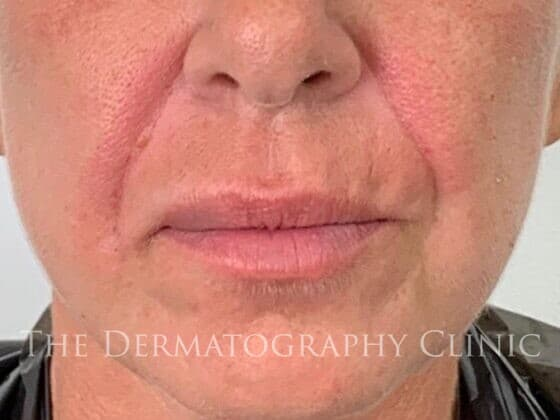 No Needle Dermal Fillers Simone: After