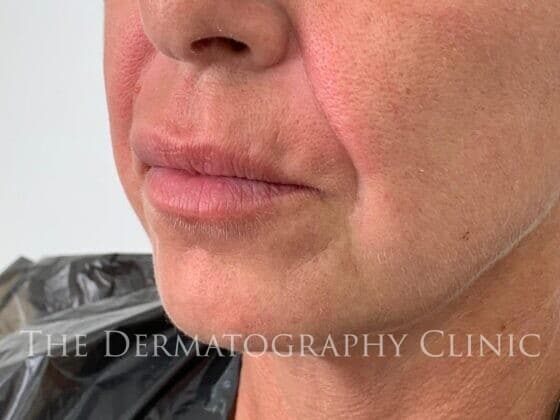 No Needle Dermal Fillers Simone: After 2