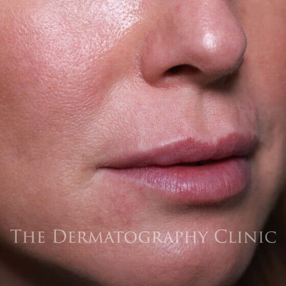No Needle Dermal Fillers Michelle: After