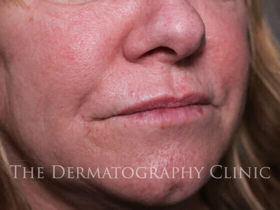 No Needle Dermal Fillers Lisa: After 5