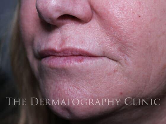 No Needle Dermal Fillers Lisa: After 6