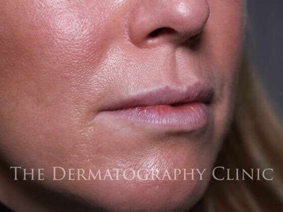 No Needle Dermal Fillers Michelle: Before