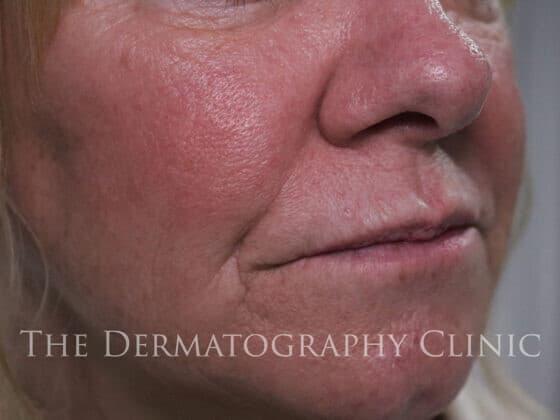 No Needle Dermal Fillers Lisa: Before 4