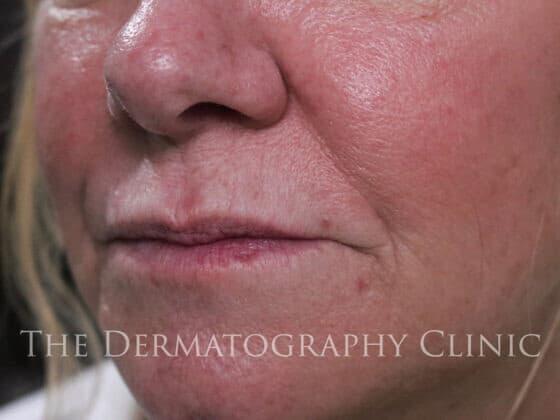 No Needle Dermal Fillers Lisa: Before