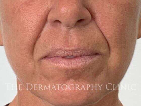 No Needle Dermal Fillers Simone: Before