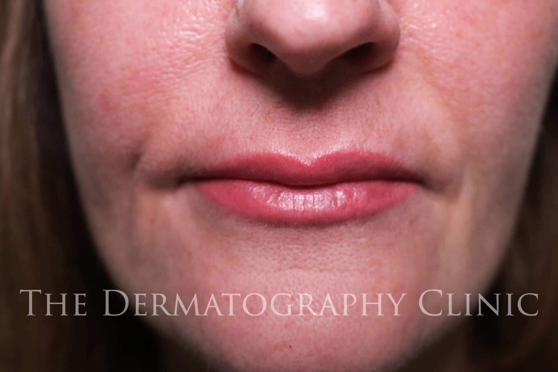 Permanent Makeup For Lips The