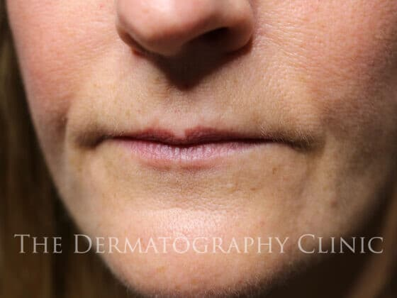 Danielle: Permanent MakeUp For Lips Before