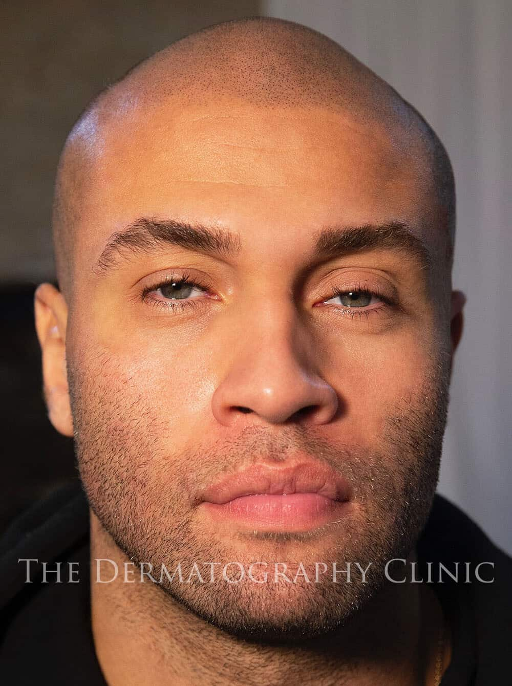 Scalp Micropigmentation 1b