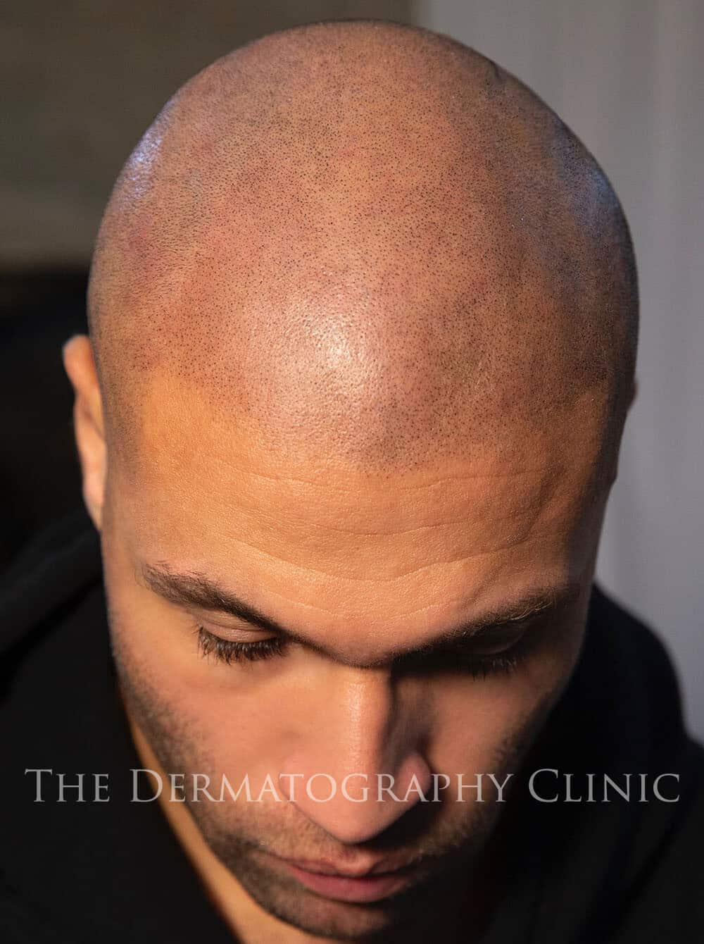 Scalp Micropigmentation 2b