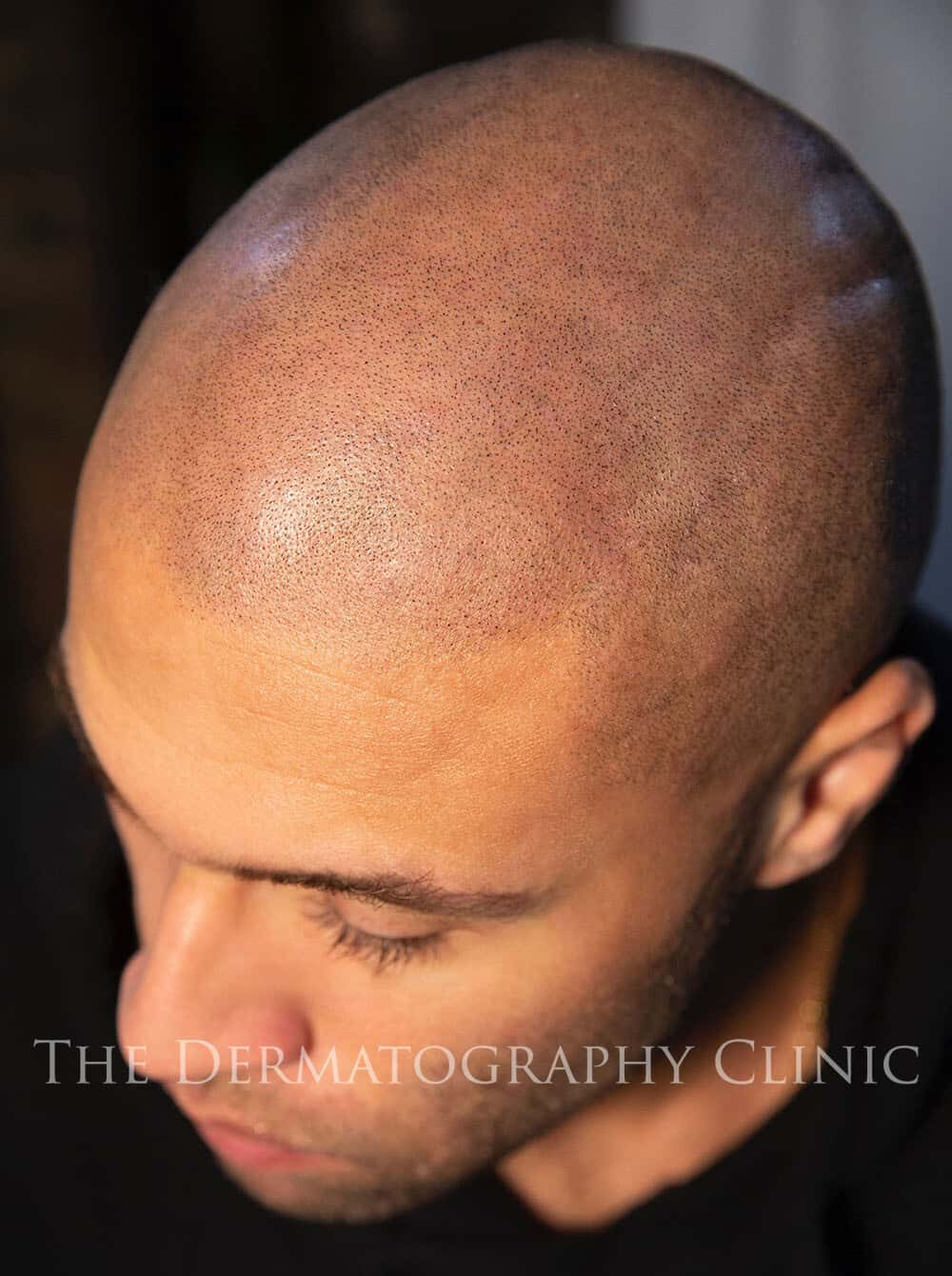 Scalp Micropigmentation 3b