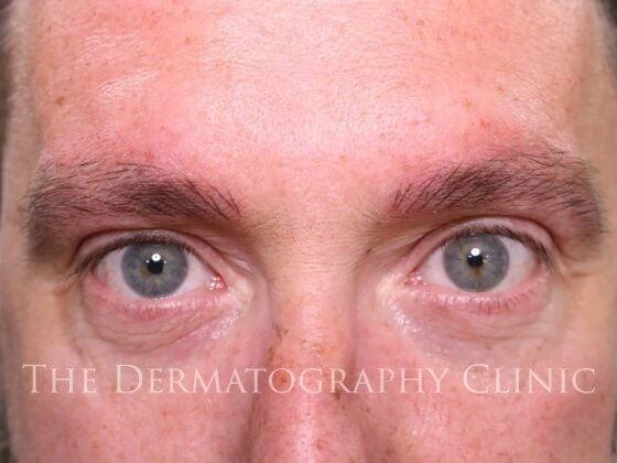 Mens Micropigmentation James After