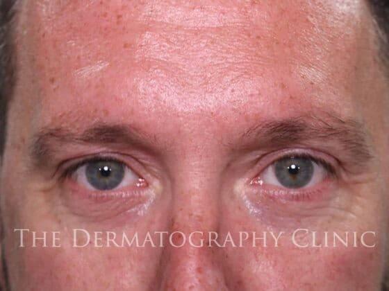 Mens Micropigmentation James Before
